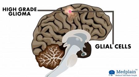 Medical Marijuana | The Next Big Thing For Agressive Brain Tumor
